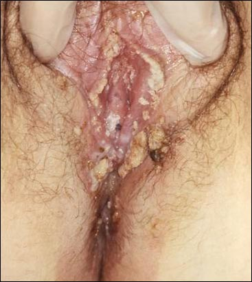 Genital warts outside the vagina